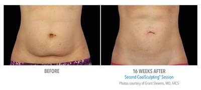 Before and After 16 weeks Photos - COOLSCULPTING IN TUCSON – NON-SURGICAL FAT REMOVAL (patient 2)
