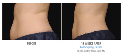 Before and After 12 weeks Photos - COOLSCULPTING IN TUCSON – NON-SURGICAL FAT REMOVAL (patient 1)