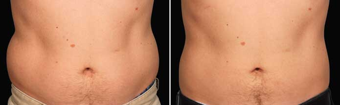 Before and After Photos - NON-SURGICAL DOUBLE CHIN TREATMENT - male (front view), patient 1