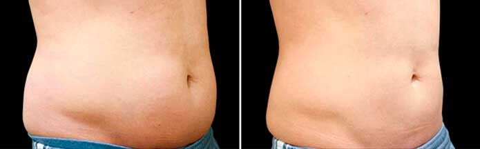 Before and After Photos - NON-SURGICAL DOUBLE CHIN TREATMENT - male (oblique view), patient 2