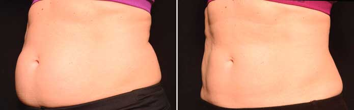 Before and After Photos - NON-SURGICAL DOUBLE CHIN TREATMENT - female (oblique view), patient 3