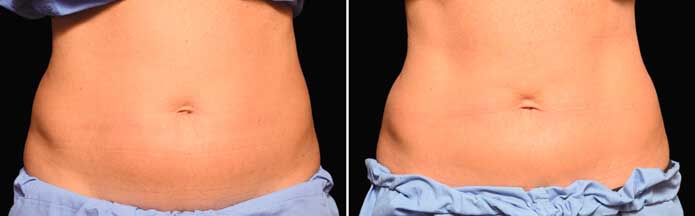 Before and After Photos - NON-SURGICAL DOUBLE CHIN TREATMENT - female (front view), patient 4