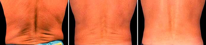 Before and After Photos - NON-SURGICAL DOUBLE CHIN TREATMENT - male (back view), patient 6