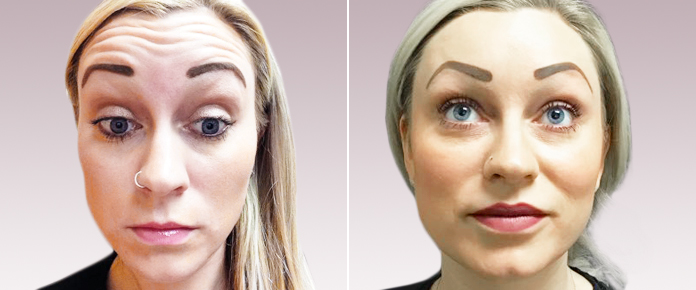 Before and After Photos - BOTOX - female (front view), patient 1
