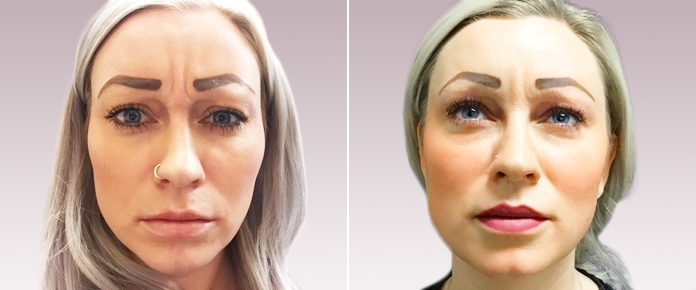Before and After Photos - BOTOX - female (front view), patient 2