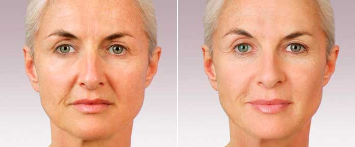 Before and After Photos - JUVÉDERM - female (front view), patient 3