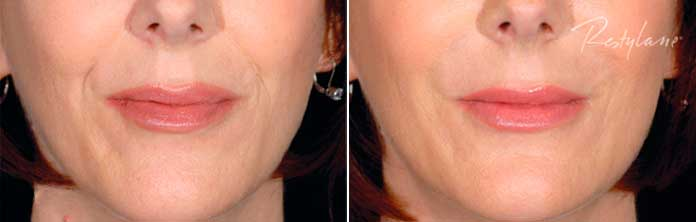 Before and After Photos - RESTYLANE - female, patient 1