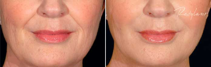 Before and After Photos - RESTYLANE - female, patient 2
