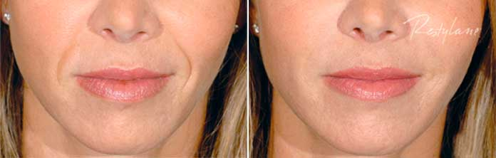 Before and After Photos - RESTYLANE - female, patient 3