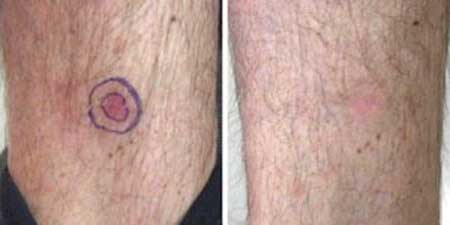 Skin Cancer - Before and After Treatment Photos - legs, patient 1
