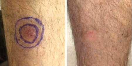 Skin Cancer - Before and After Treatment Photos - legs, patient 2