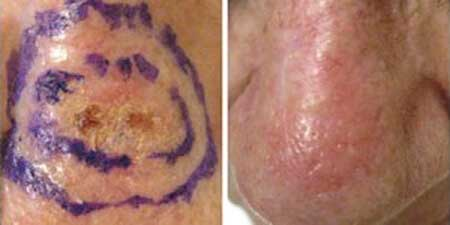 Skin Cancer - Before and After Treatment Photos - nose, patient 3