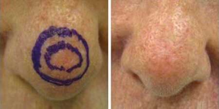 Skin Cancer - Before and After Treatment Photos - nose, patient 4