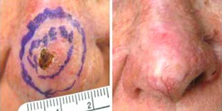 Skin Cancer - Before and After Treatment Photos - nose, patient 5
