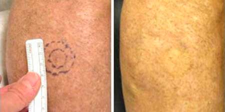 Skin Cancer - Before and After Treatment Photos - legs, patient 7