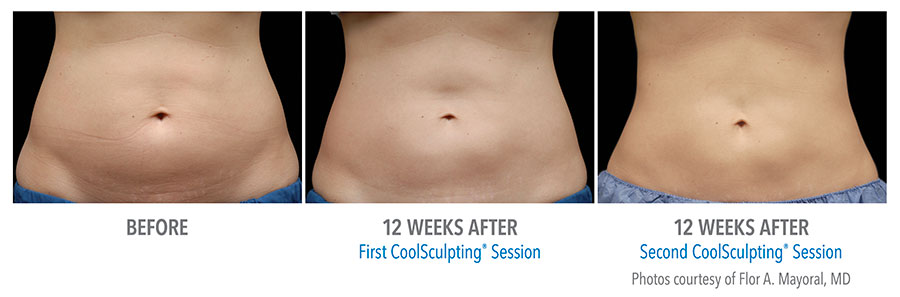 Before and After Photos: First and Second CoolSculpting Session Female, 12 weeks after, frontal view