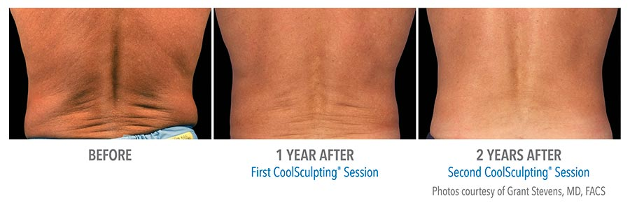 Before and After Photos: 1 year After First and 2 years After Second CoolSculpting Session Patient, back view