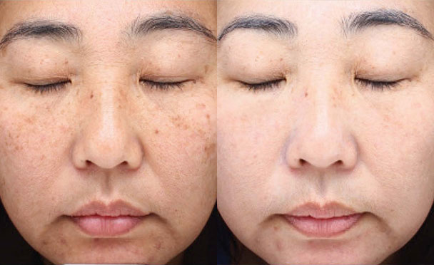 Before and After Photos - HALO HYBRID FRACTIONAL LASER - front view, female patient 1