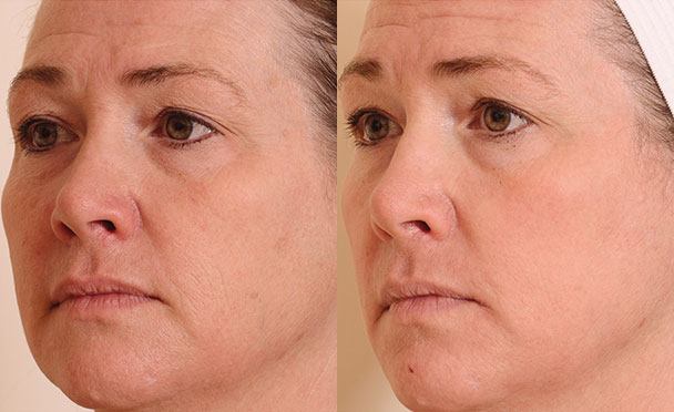 Before and After Photos - HALO HYBRID FRACTIONAL LASER - oblique view, female patient 2