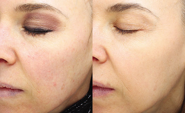 Before and After Photos - HALO HYBRID FRACTIONAL LASER - oblique view, female patient 3