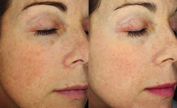 Before and After Photos - HALO HYBRID FRACTIONAL LASER - oblique view, female patient 4