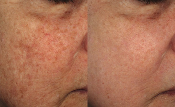 Before and After Photos - HALO HYBRID FRACTIONAL LASER - oblique view, female patient 5