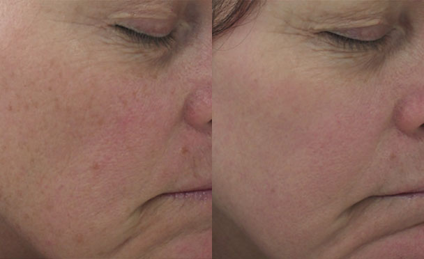Before and After Photos - HALO HYBRID FRACTIONAL LASER - oblique view, female patient 6