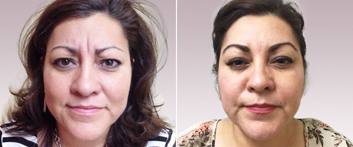 Before and After Photos - BOTOX - female (front view), patient 3